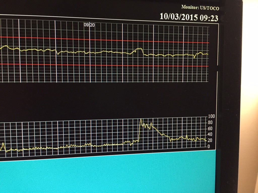 Monster contraction during the first monitoring session